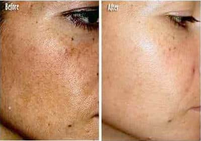 Skin Lightening Serum - Dark Spot Corrector with Kojic Acid For Face & Body - 1oz 4
