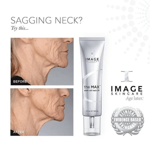 Image Skin Care The MAX Stem Cell Neck Lift - 2oz 2