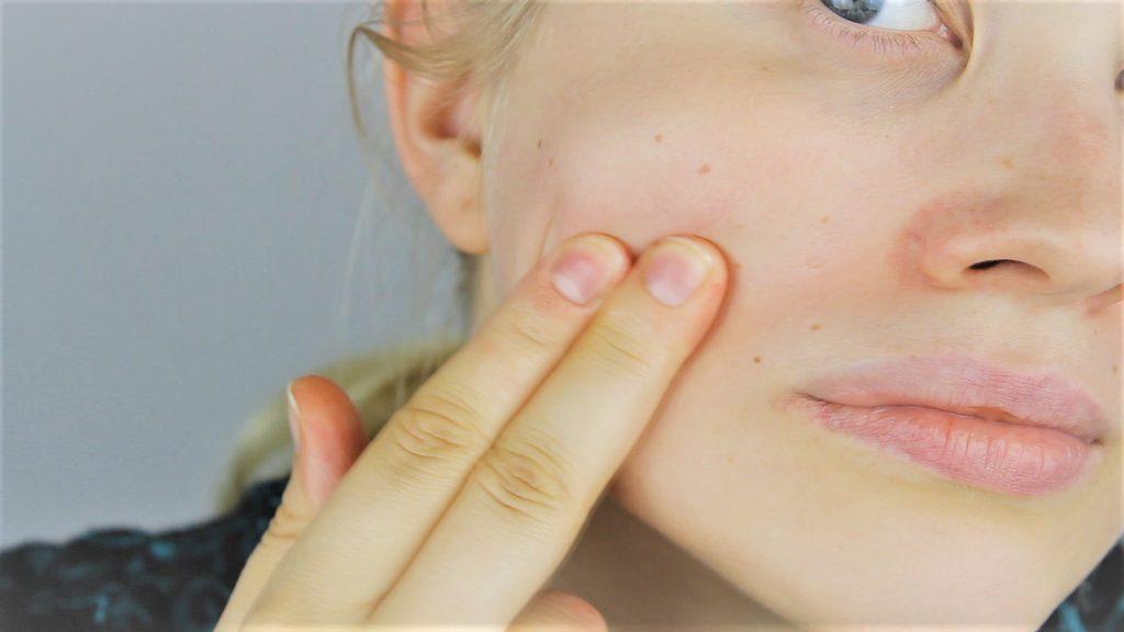 Treat Acne Naturally, Organic Skincare, Fix Acne, Cure Acne