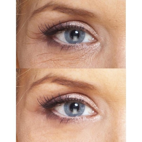 Biotic Repair Eye Treatment 4