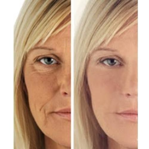 C+ Antioxidant Wrinkle Reduction Serum 5