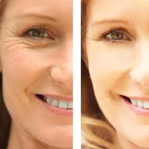 C+ Antioxidant Wrinkle  Reduction Serum 4